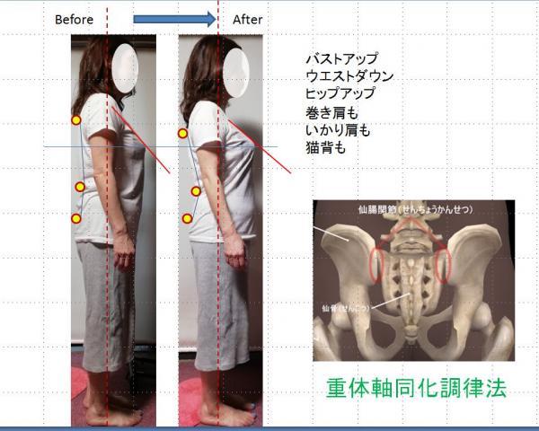 仙腸関節リリース整体 「重体軸SKB法」